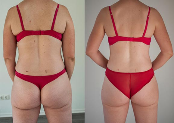 Fett-Weg-Laser Behandlung und Cellulite-Behandlung in Rosenheim und Bad Aibling